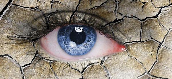 Dry eye season